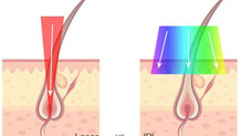 Laser Hair Removal: Laser vs IPL