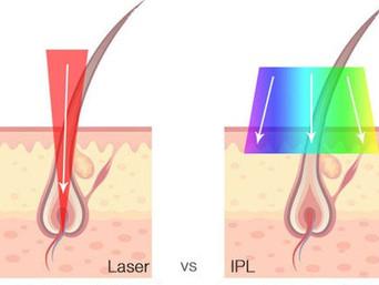 Laser Hair Removal: Laser vs IPL