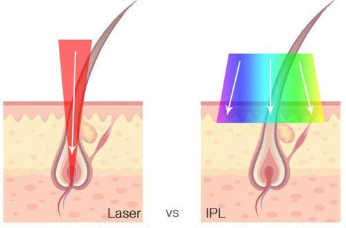 laser hair removal vs ipl