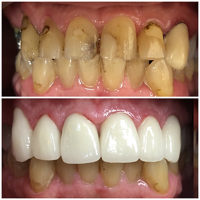 Smile Transformation 12