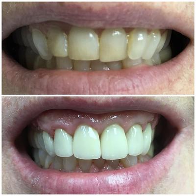 Smile Transformation 13