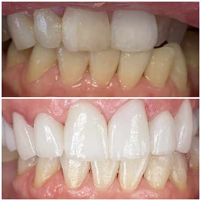 Smile Transformation 11