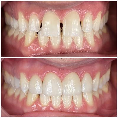 Smile Transformation 2