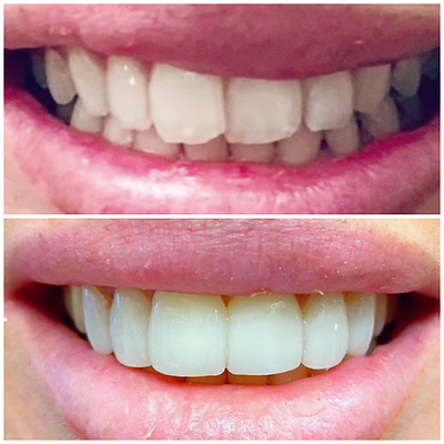 Smile Transformation 5