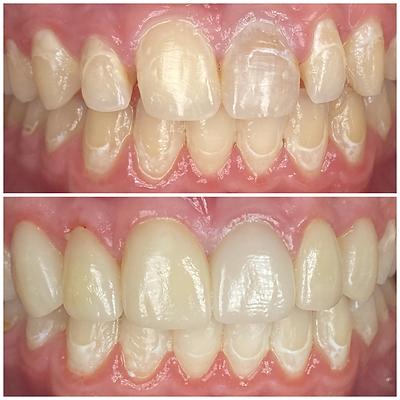 Smile Transformation 3