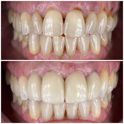 Smile Transformation 7