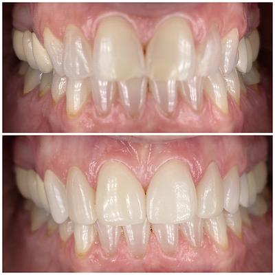 Smile Transformation 8