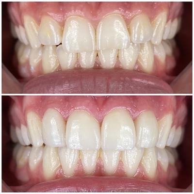 Smile Transformation 4