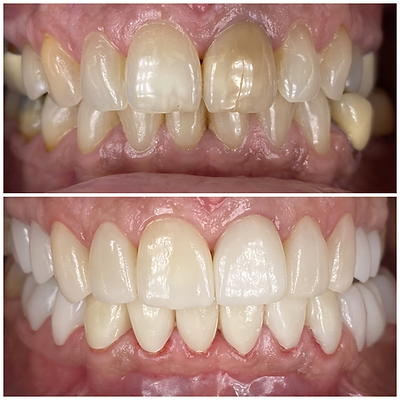 Smile Transformation 10