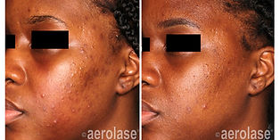 NeoClear Acne - After 4 Treatments - Mic