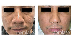 NeoSkin Rejuvenation - After 7 Treatment