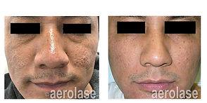 NeoSkin Rejuvenation - After 7 Treatment