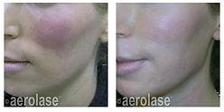 NeoSkin Rosacea - After 1 Treatment - Ke