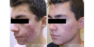 NeoClear Acne - After 4 Treatments - Kev