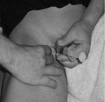 injecting fem.jpg