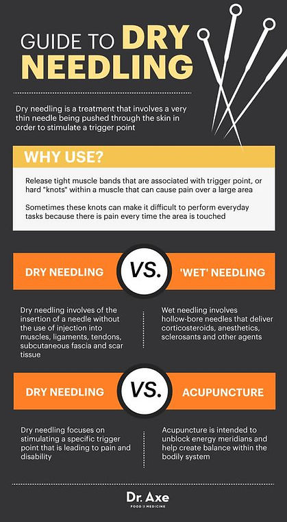 Helton Chiropractic | Dry Needling / Acupuncture