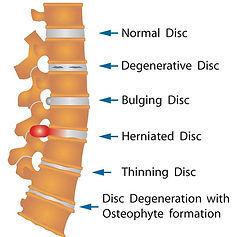 Spinal Disc Degeneration