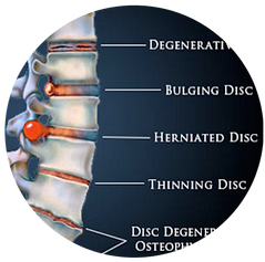 Disc Treatment Relief, Chiropractor