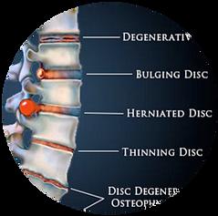 Disc Treatment Relief, Chiropractor