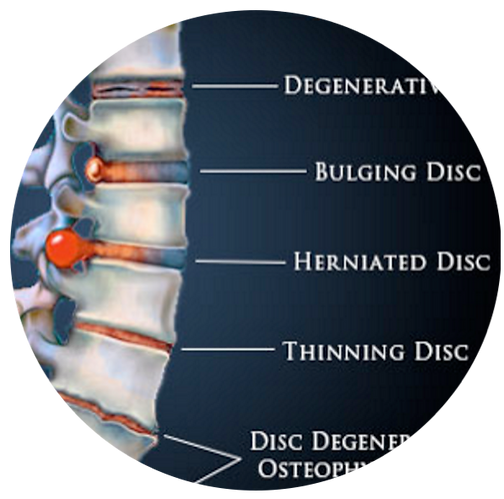 Oceanside, CA Chiropractor, Spinal Disc Problems, Back Pain, Spinal Decompression, Dr. Jason Kullmann