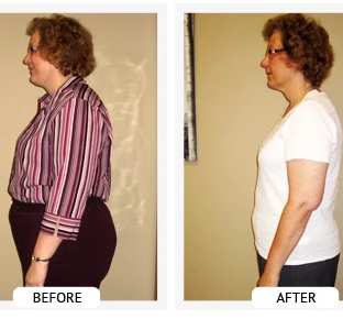Sherry lost 55 lbs and 41 inches