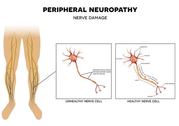 Symptoms-of-Peripheral-Neuropathy-03.jpg