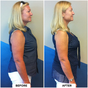 Jeanie's Before and After
