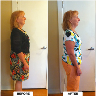 Barb's Before and After