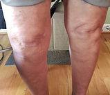 knee-pain-elkin-nc.jpg