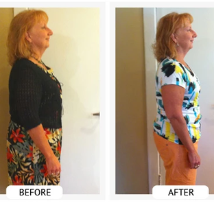 Barb W. lost 27 lbs and 25 inches