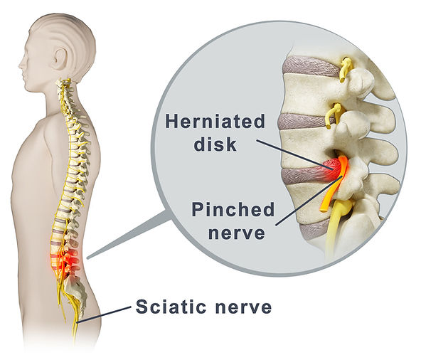 Holyoke, MA Chiropractor, Spinal Disc Problems, Back Pain, Spinal Decompression, Dr. James McCann
