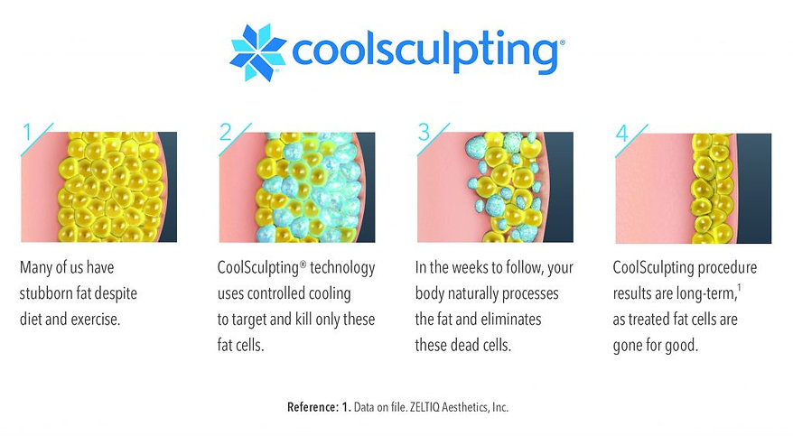 Cool Sculpting.jpg