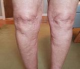 knee-pain-elkin-nc-after.jpg
