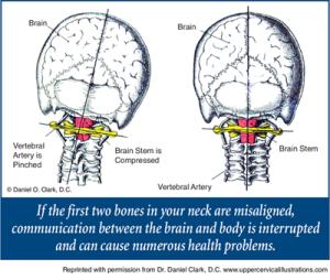 upper-cervical-misalignment-300x254.png