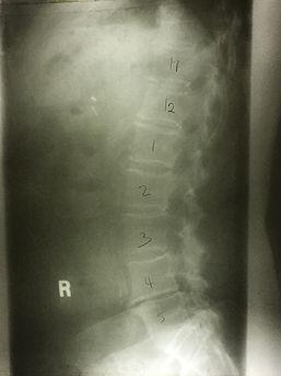 After Spine .JPG