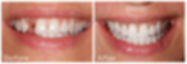 dental implants.png
