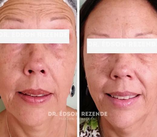 Botox 3.jpg