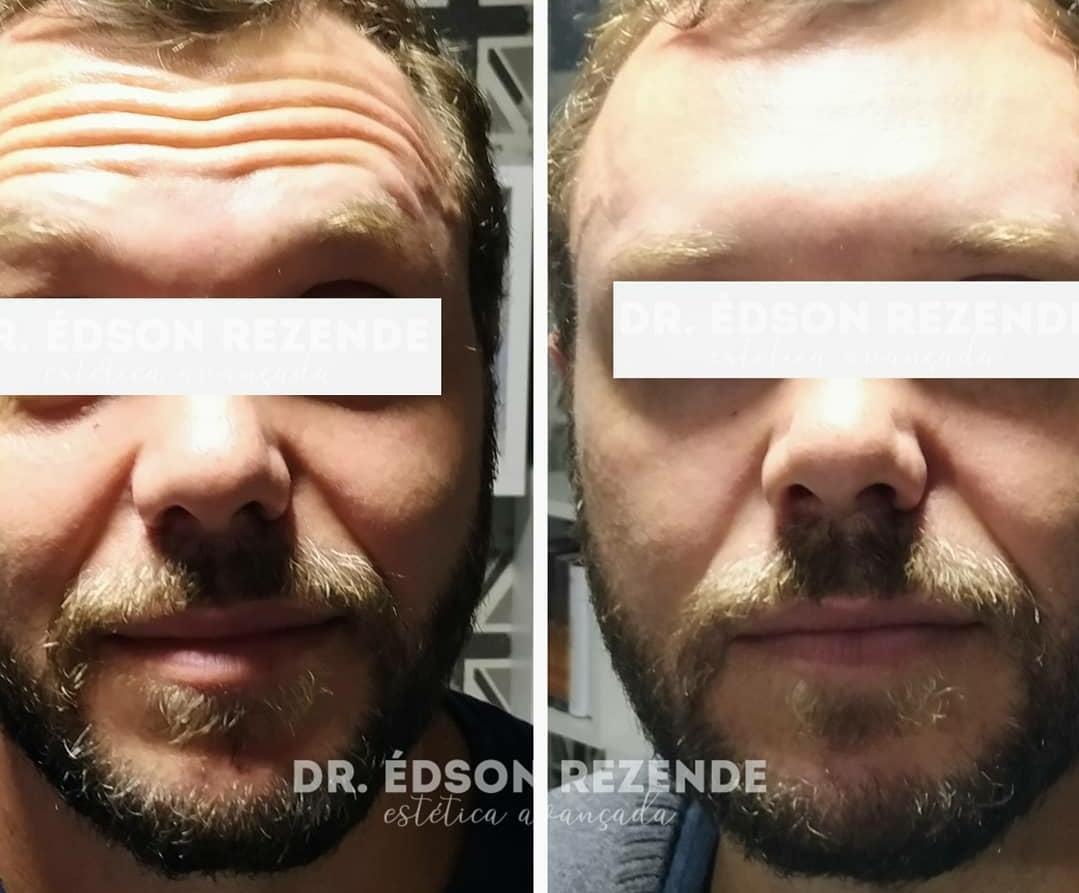 Botox 2.jpg