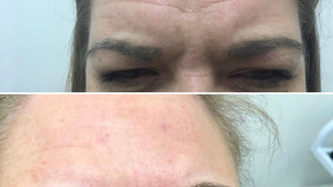 Botox results at Eterno Skin Clinic in Wolverhampton