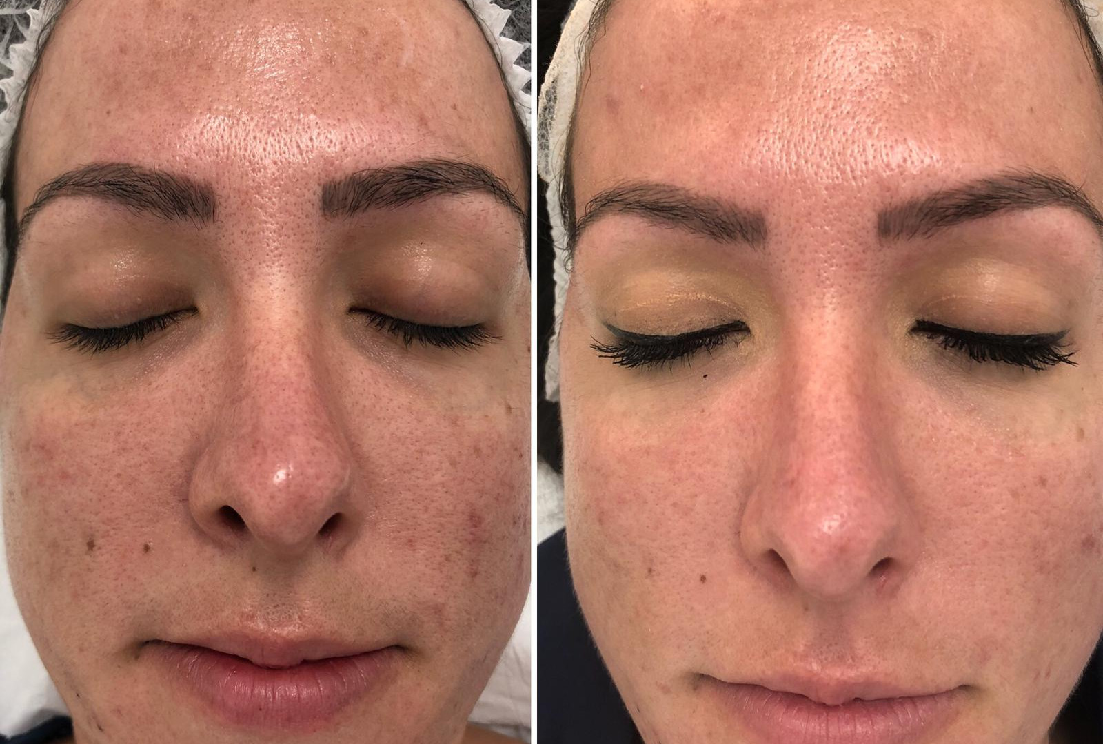 IPL redness and acne at Eterno