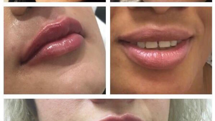 Dermal fillers for fuller lips at Eterno Skin Clinic in Wolverhampton