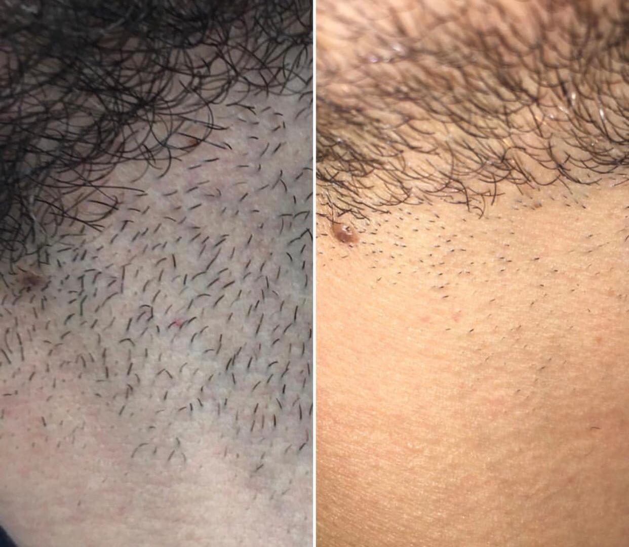 IPL Hair Removal at Eterno