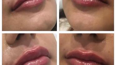 Lip augmentation Eterno Skin Clinic in Wolverhampton