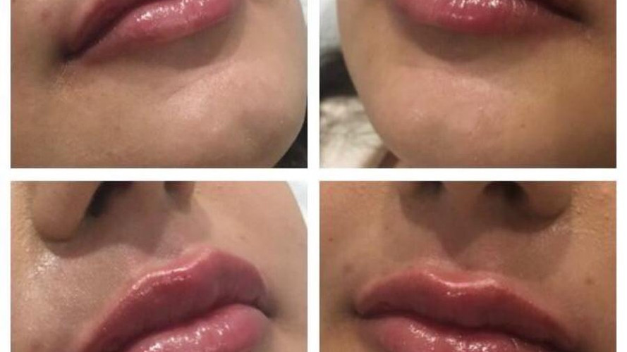 Lip augmentation Eterno Skin Clinic in Wolverhampton