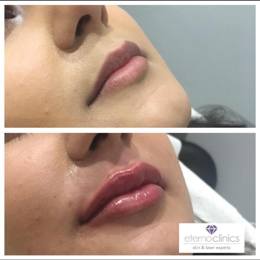 Lip enhancement at Eterno Skin Clinic in Wolverhampton