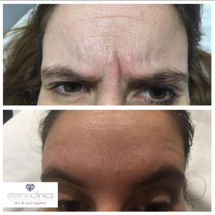 Anti-wrinkle results at Eterno Skin Clinic in Wolverhampton