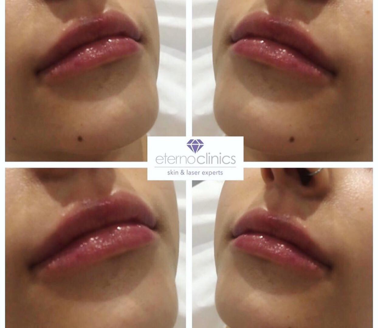 Dermal fillers for fuller lips at Eterno Skin Clinic in Wolverhampton
