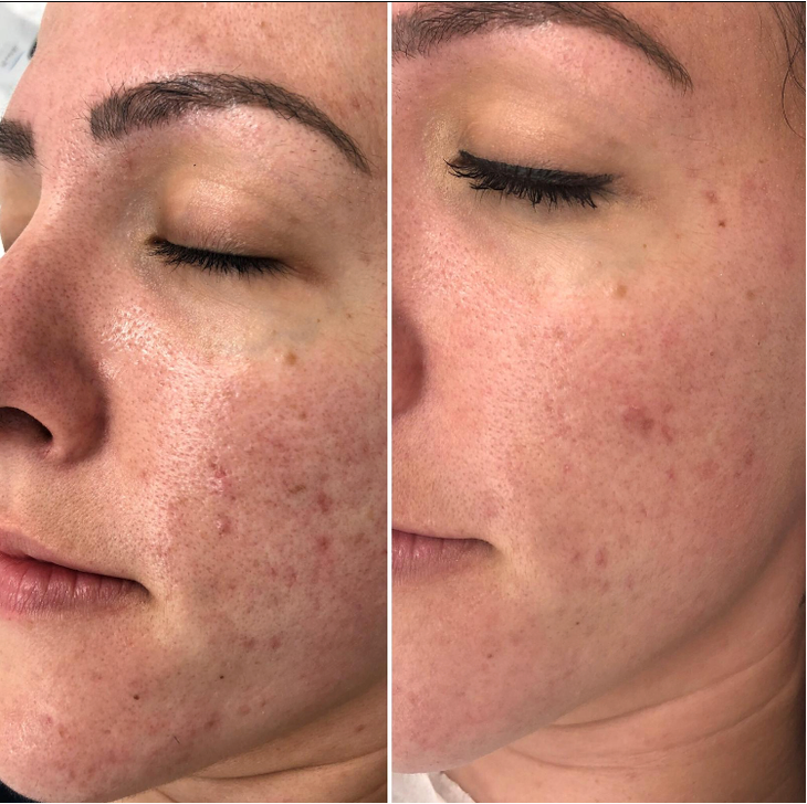 Redness reduction at Eterno