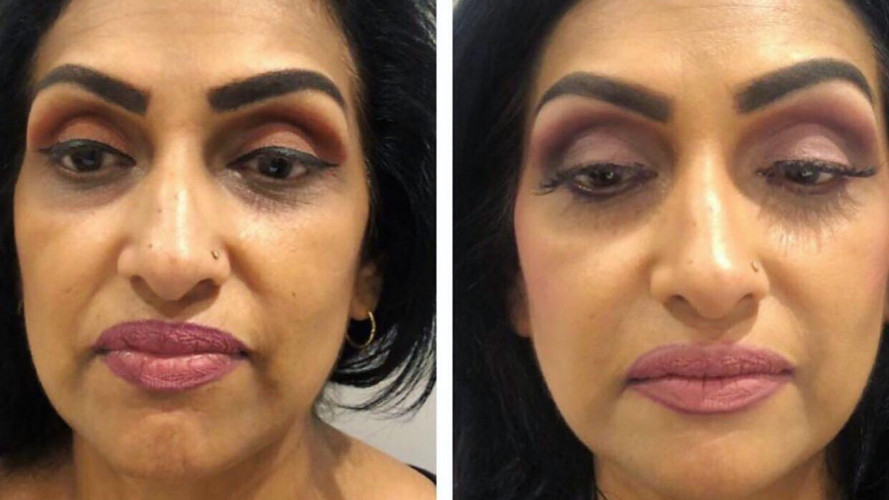 Cheek filler 1.JPG