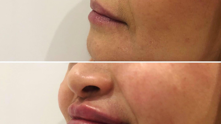 Cheek filler 3.JPG